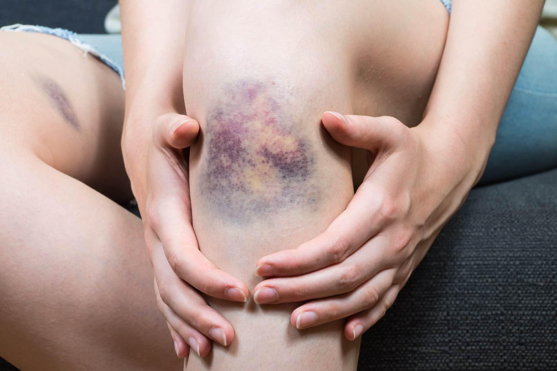 Domestic Abuse legal help in Devon